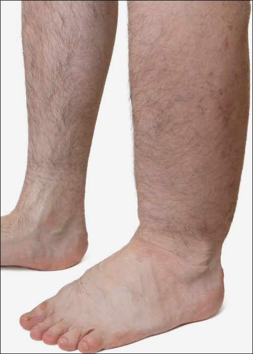 Schmerzen dicker knöchel keine Geschwollene Beine